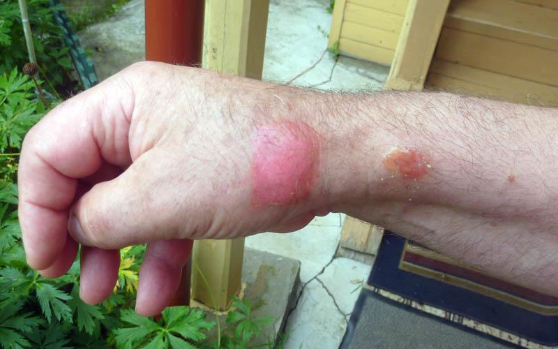 Чем лечить ожоги от борщевика в домашних условиях 22