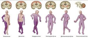 мозг и фигуры людей