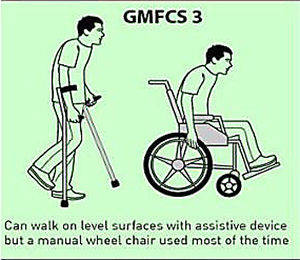 GMFCS 3