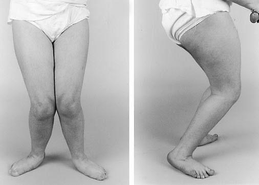 Ноги ребенка со спастической диплегией.